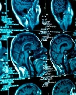 Brain Injury Lawyers in South Carolina | Columbia, Lexington, Sumter, Camden, Aiken