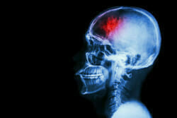 """Stroke"" (cerebrovascular accident). Film x-ray skull lateral with stroke and blank area at left side"