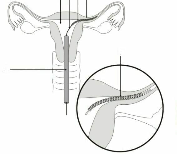 Essure Birth Control Device Defects Prompt Lawsuits From Medical Complications